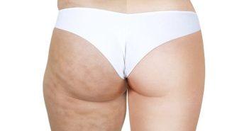 vencer a celulite gordura localizada